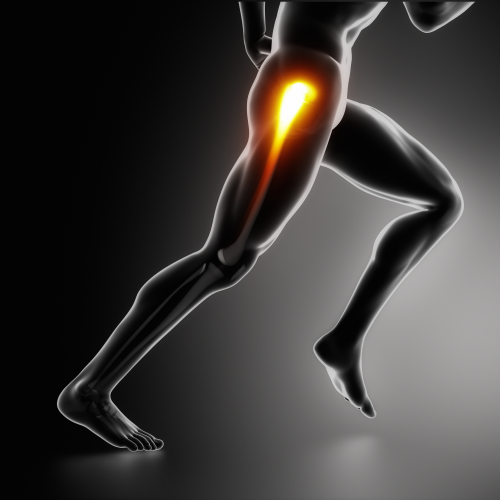 Runner with glute medius dysfunction